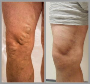 varicose vein removal surgery evla sclerotherapy before after photos