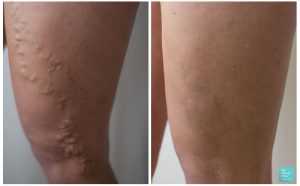 varicose vein surgery before after photo