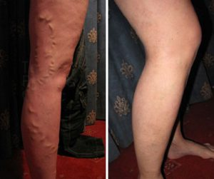 varicose-vein-treatment before after photo