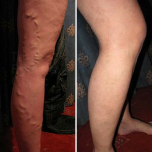 Before and after EVLA and Phlebectomy Treatment