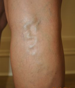 varicose vein what do they look like