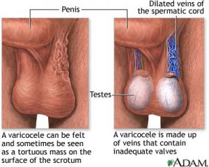 varicose veins in the scrotum