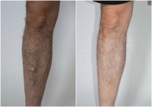 men varicose veins before after photo