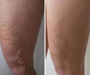 varicose veins removal specialist treatment
