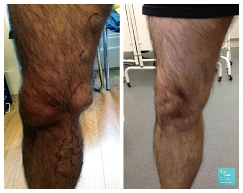 varicose veins removal treatment evla laser procedure before after photos