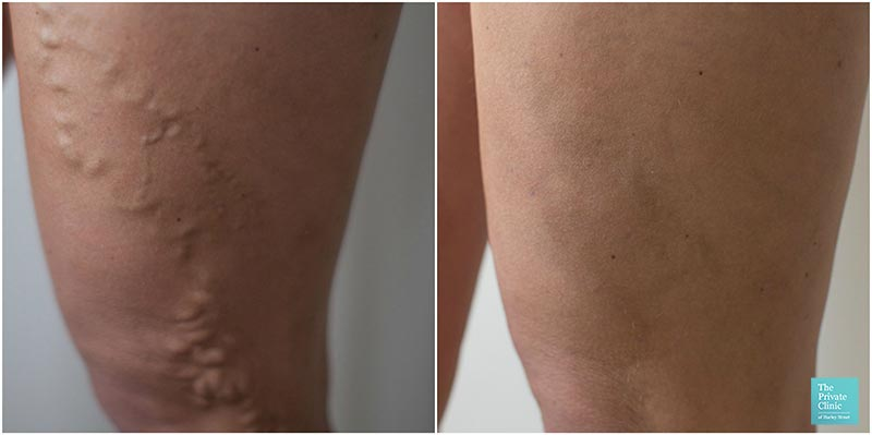 varicose veins treatment evla laser removal procedure before after photos