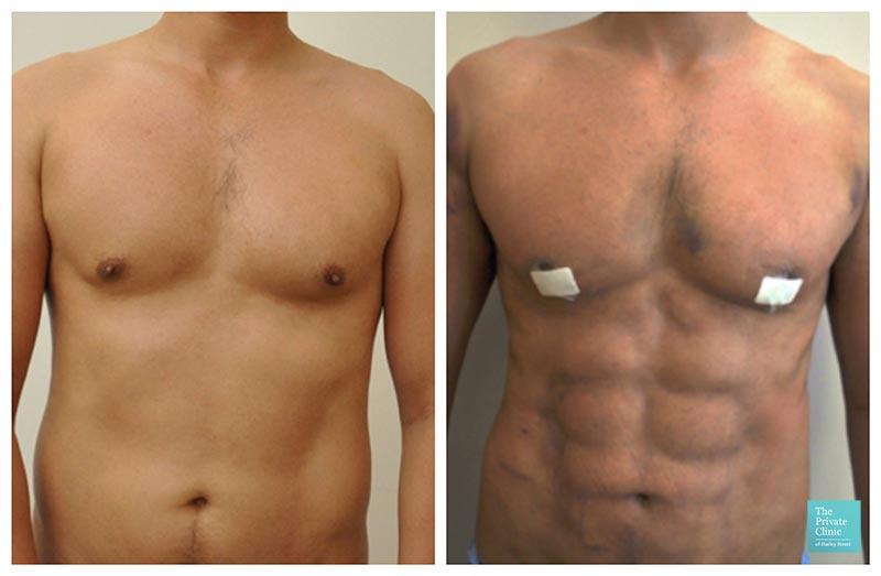 Vaser Hi-Def Liposuction UK before after photo