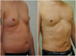 vaser lipo mid-def before after photo the-private-clinic