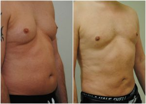 vaser lipo mid def male before after photo