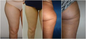 liposuction legs thighs before after photo