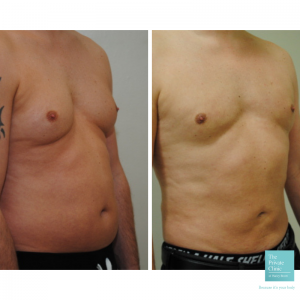 gynecomastia male chest reduction before and after photo