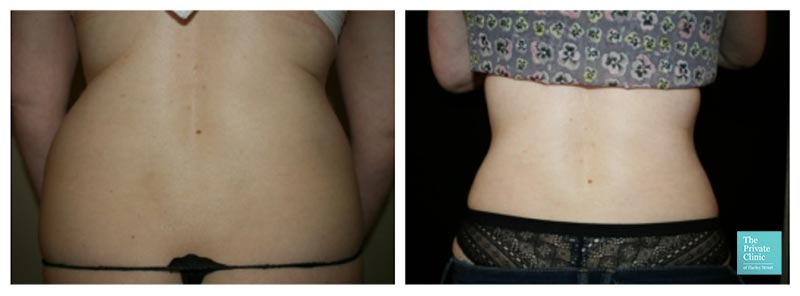 vaser lipo female back sides love handles before after photos