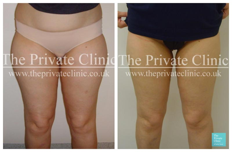 vaser lipo female thighs upper legs before after photos