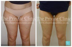 vaser liposuction female thighs upper legs before after photos