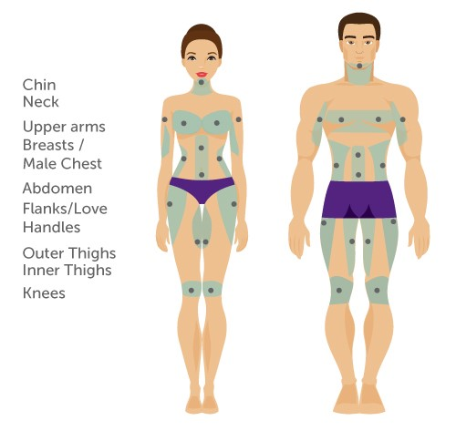 vaser liposuction body areas male female front