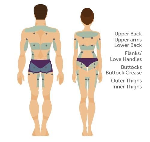 vaser liposuction body areas men women back