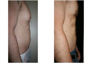 liposuction stomach male before after photo