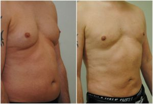 Vaser Liposuction male chest tummy before after photo