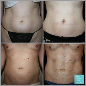 vaser liposuction stomach tummy abdomen before after photos results