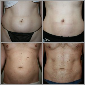 stomach liposuction before and after photos results