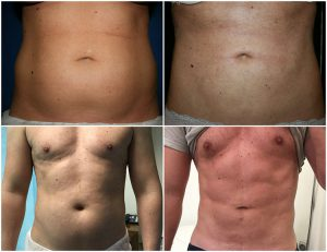 vaser liposuction london before after photos