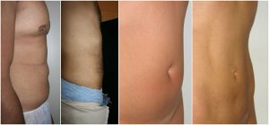 vaser lipo abdo before after photo