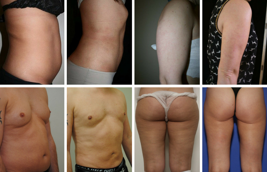 Vaser Liposuction to the abdomen, arms, both chest and abdomen, and inner thighs Before and After photos