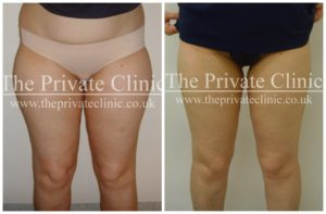 vaser liposuction female thighs before and after photos