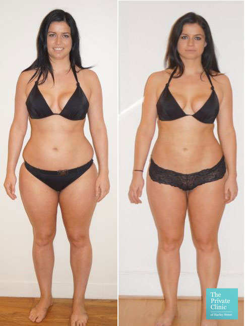 vaser liposuction hips waist thighs stomach bum before after photo lipo results