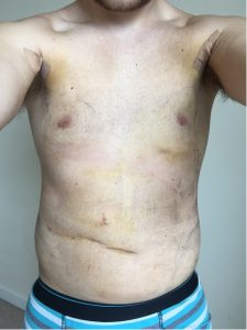vaser liposuction jake jamie recovery chest