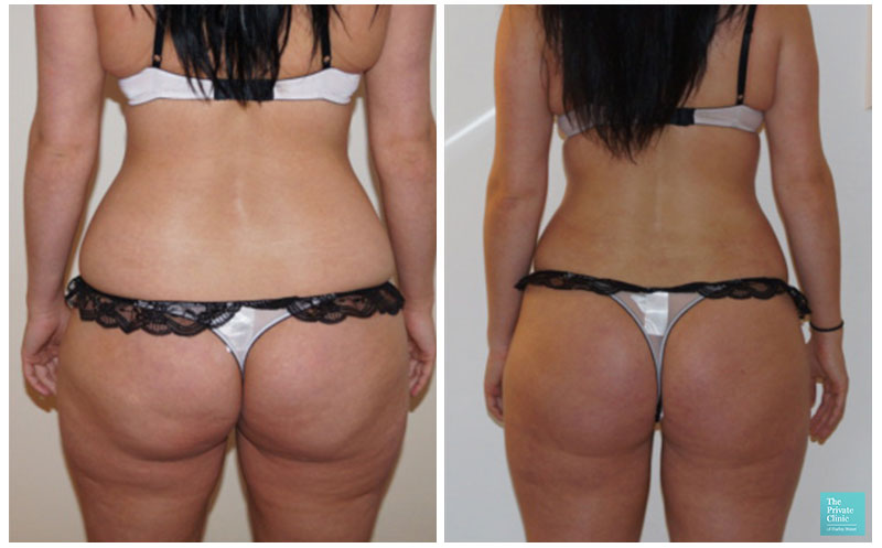 buttocks liposuction before and after photos results