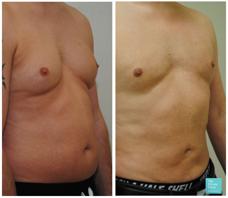 liposuction male abdomen chest reduction before after photo