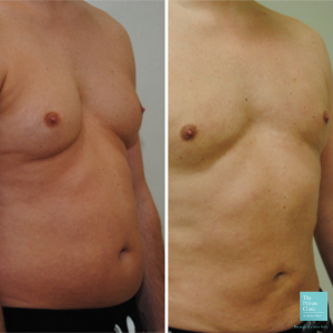 Vaser liposuction abdomen and chest men before after photo