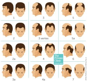 what is norwood hair loss scale stages